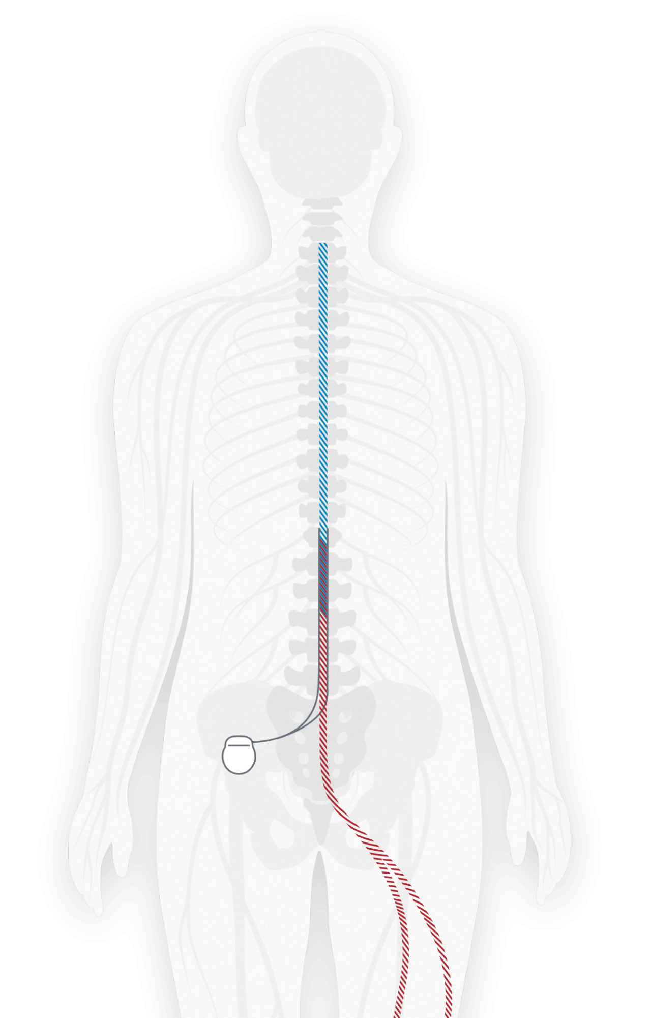 Diagram showing where a spinal cord stimulator is implanted and attached to nerves near the spine to send pulses to the nerves to relieve pain.